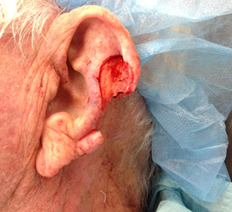 Ear Surgery Before Dr Michael A Carron