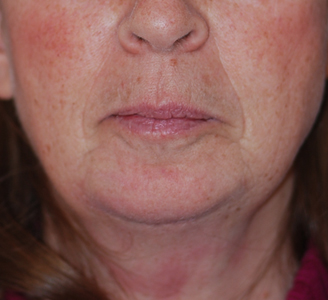 Chin Augmentation & Mole Removal  Dr. Giancarlo Zuliani
