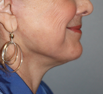 Neck and Facelift After Dr. Giancarlo Zuliani