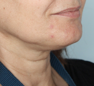 Neck lift-Before