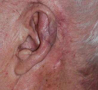 Ear Surgery After Dr Michael A Carron
