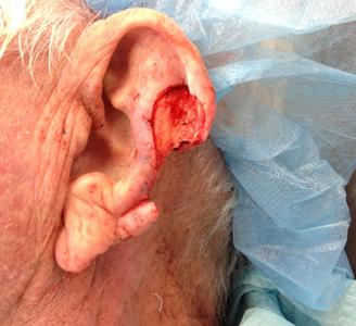 Ear Surgery Before Dr Michael A Carron