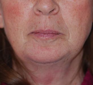 Chin Augmentation & Mole Removal  Dr. Giancarlo Zuliani