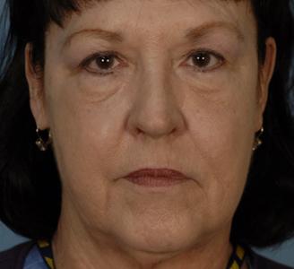 Facelift After Dr Michael A Carron
